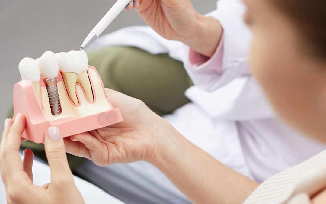 Cost of Dental Implants in Victoria BC